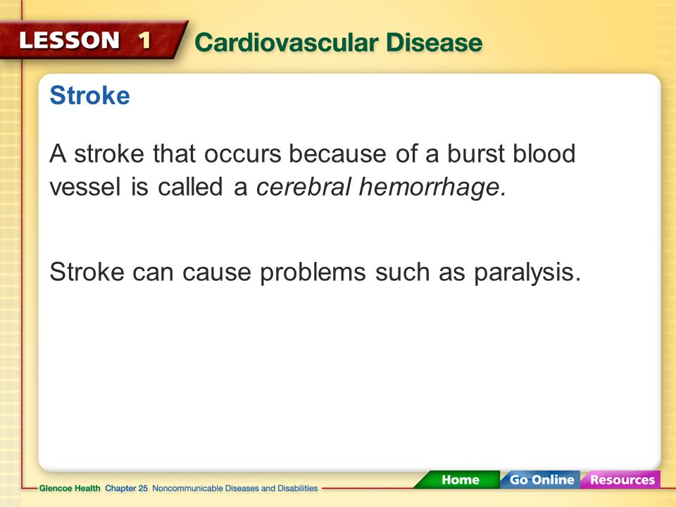 Stroke Sometimes an artery supplying blood to the brain becomes blocked or bursts, resulting in a stroke.