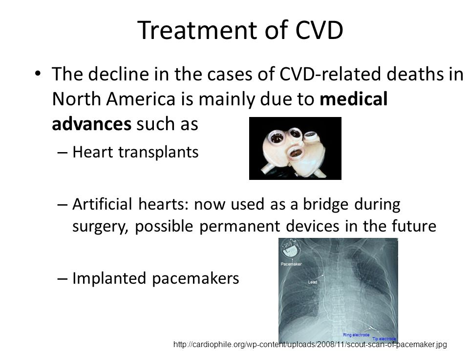 Treatment of CVD The decline in the cases of CVD-related deaths in North America is mainly due to medical advances such as – Heart transplants – Artificial hearts: now used as a bridge during surgery, possible permanent devices in the future – Implanted pacemakers