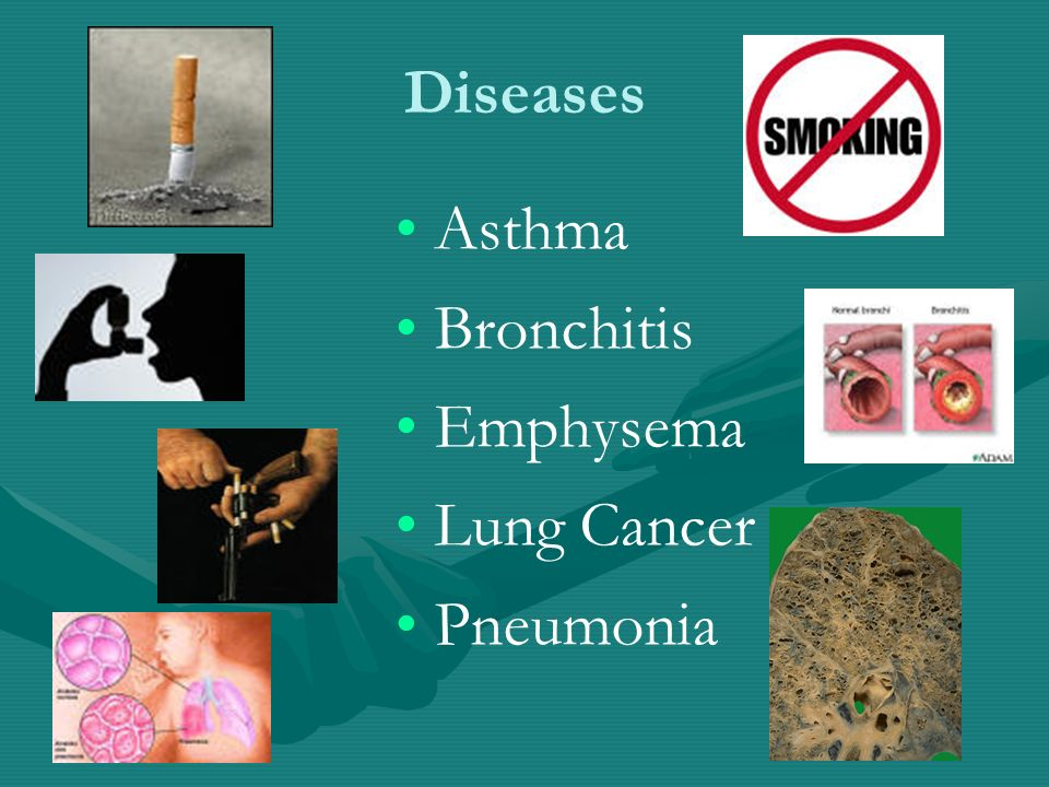 Diseases Asthma Bronchitis Emphysema Lung Cancer Pneumonia