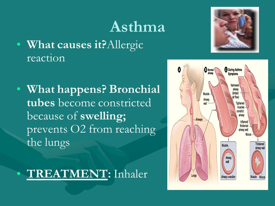 Asthma What causes it Allergic reaction What happens.