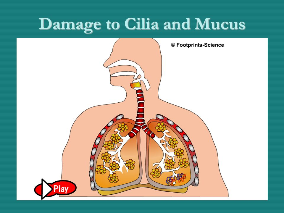 Damage to cilia by tar - Animation Damage to Cilia and Mucus