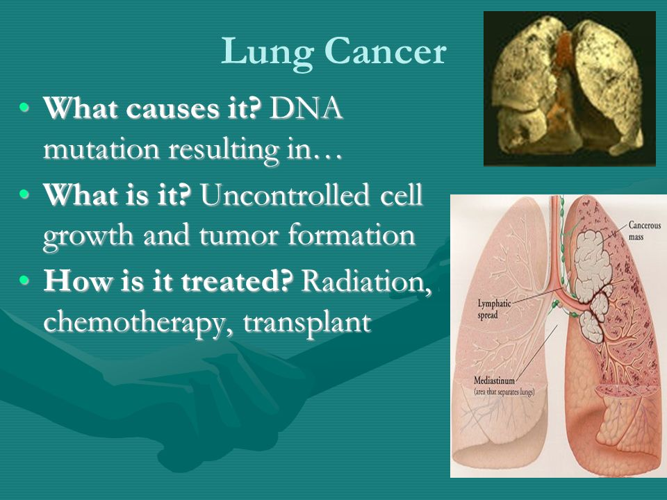 Lung Cancer What causes it. DNA mutation resulting in…What causes it.