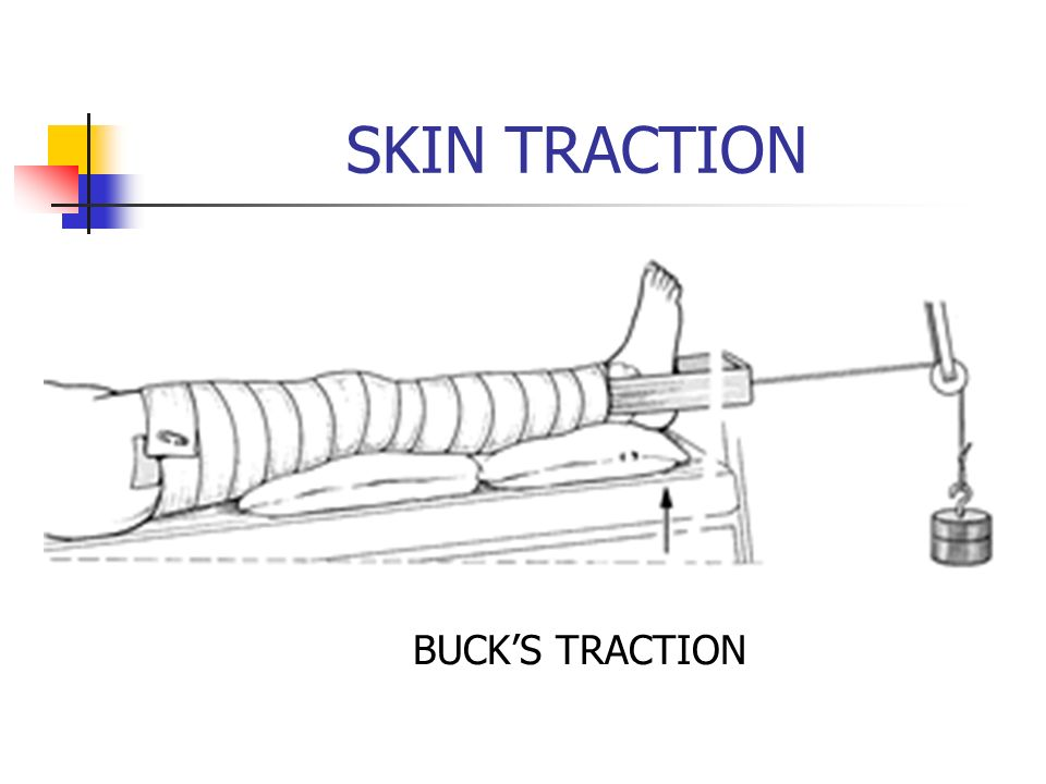 SKIN TRACTION BUCK'S TRACTION