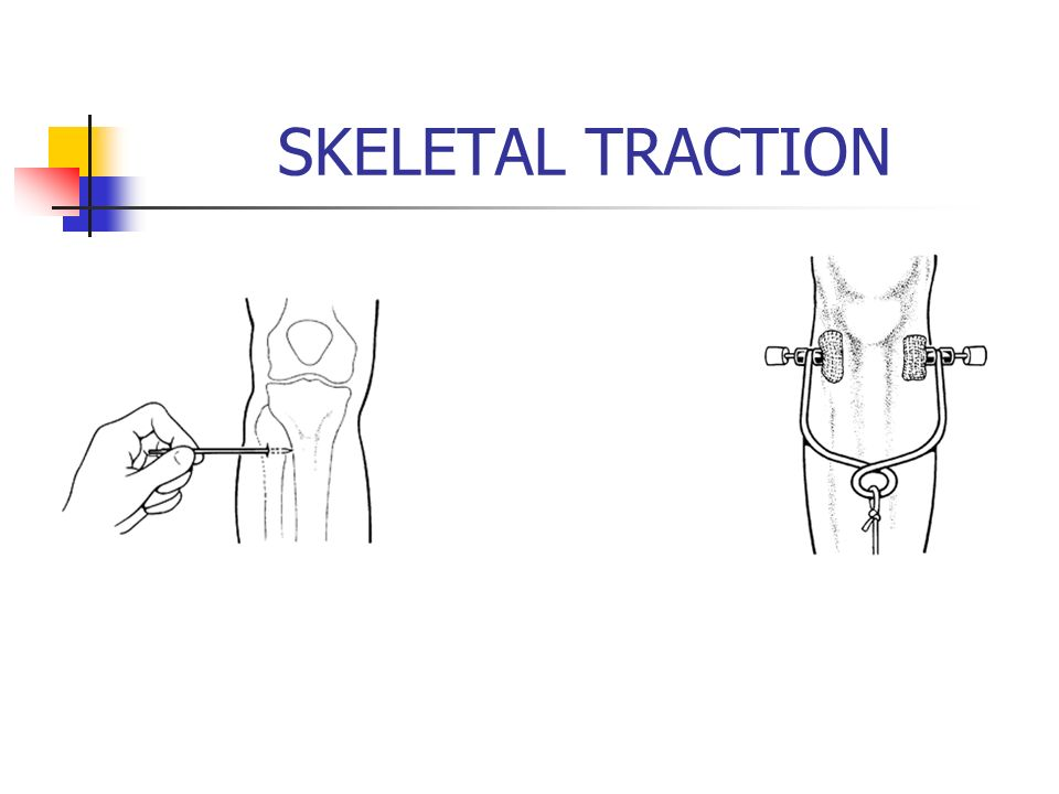 SKELETAL TRACTION
