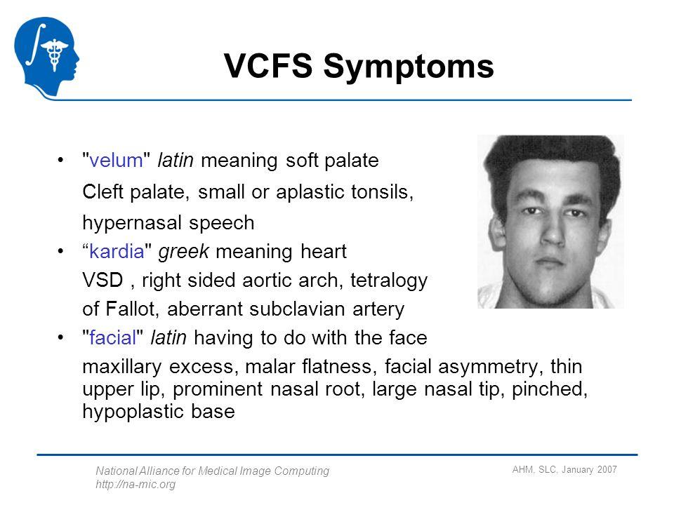 Cardio facial syndromes