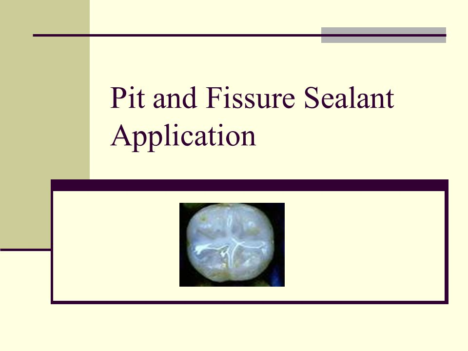 Pit And Fissure Sealant Application Rules Regulations Must Be