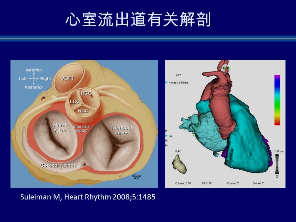 Ecg Outflow Tract Vt Ventricular