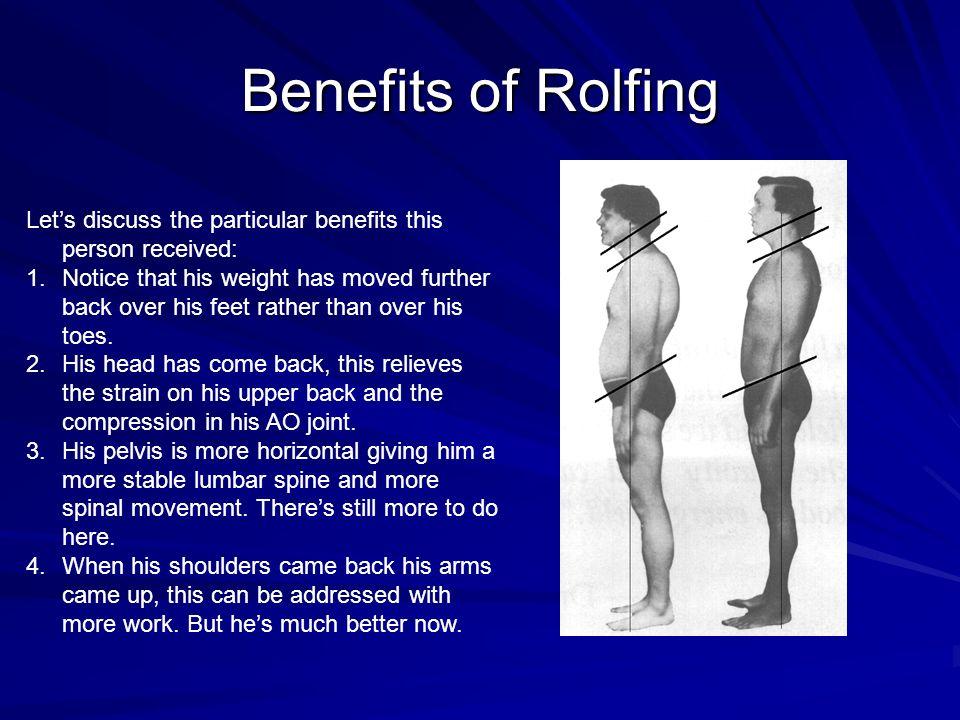 Rolfing benefits