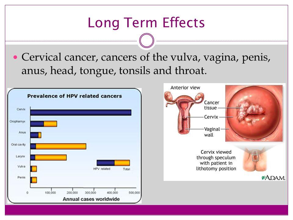 Human papillomavirus infection long term effects
