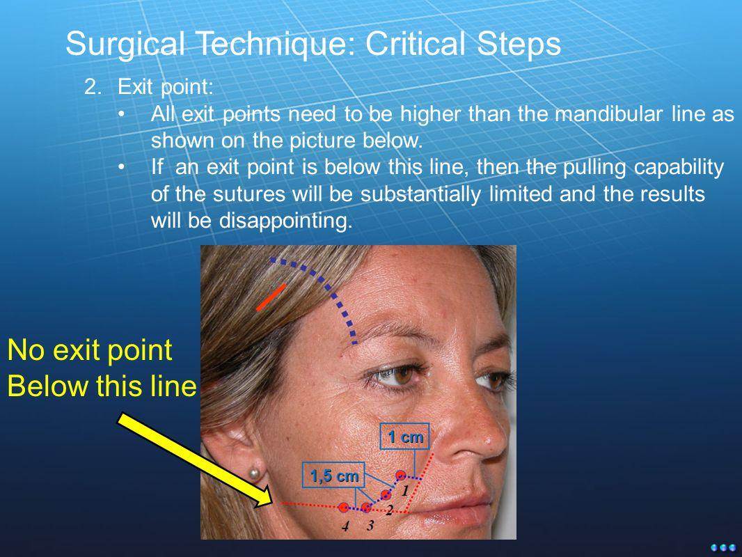 New Generation Threads for Tissue Suspension Technique Milestones