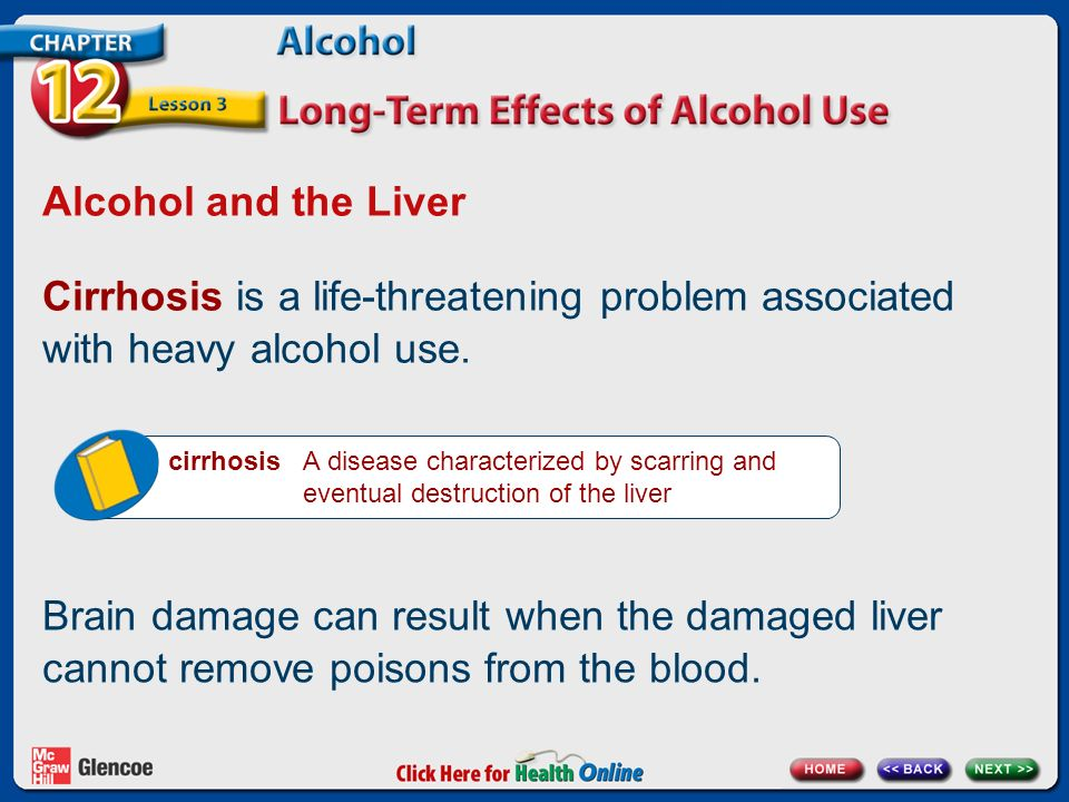 Alcohol and the Liver Cirrhosis is a life-threatening problem associated with heavy alcohol use.