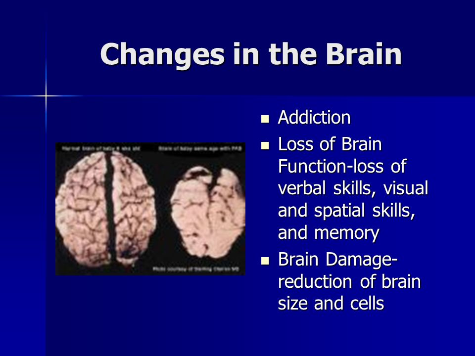 Changes in the Brain Addiction Addiction Loss of Brain Function-loss of verbal skills, visual and spatial skills, and memory Loss of Brain Function-loss of verbal skills, visual and spatial skills, and memory Brain Damage- reduction of brain size and cells Brain Damage- reduction of brain size and cells