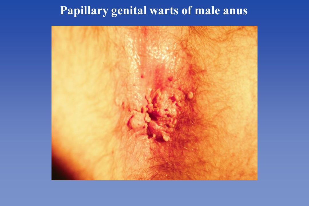 Male anal warts