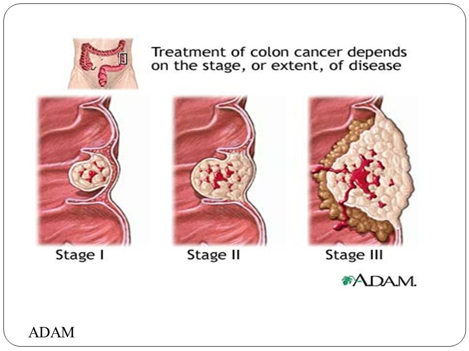 Cancer of the Digestive System Colorectal Cancer. - ppt download
