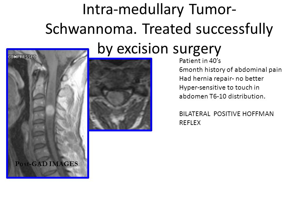Intra-medullary Tumor- Schwannoma. Treated successfully by excision surgery Post-GAD IMAGES.