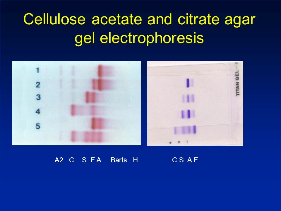 Cellulose acetate and citrate agar gel electrophoresis A2 C S F A Barts H C S A F