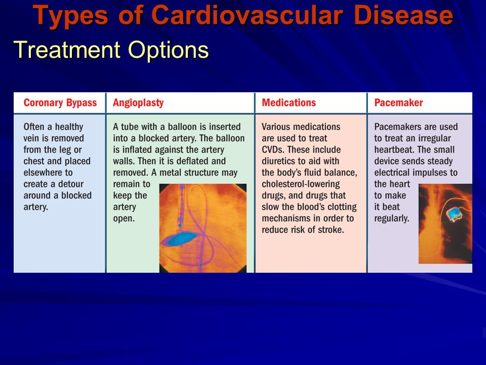 Treatment Options Types of Cardiovascular Disease