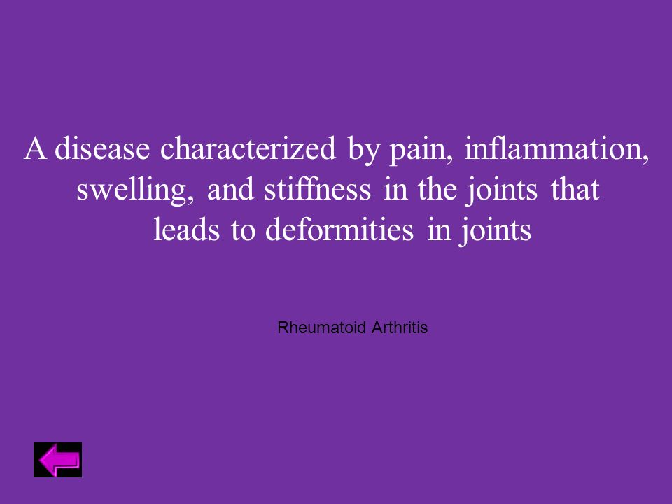 A disease characterized by pain, inflammation, swelling, and stiffness in the joints that leads to deformities in joints Rheumatoid Arthritis
