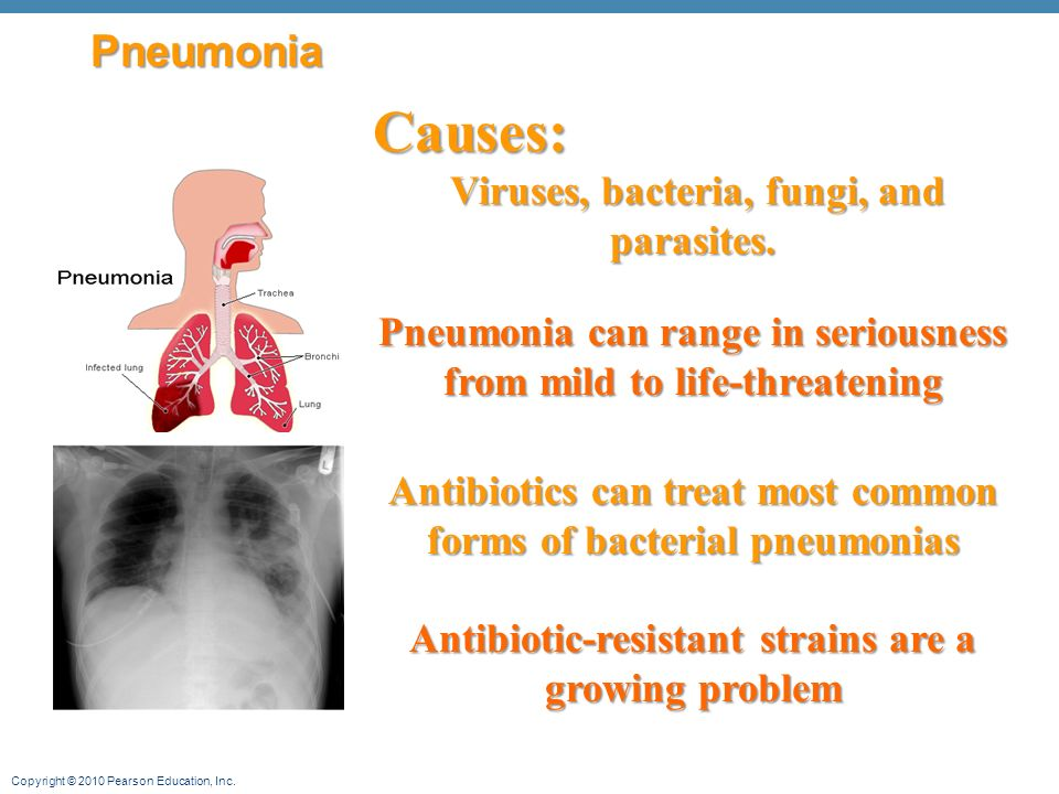 Copyright © 2010 Pearson Education, Inc. Pneumonia Causes: Viruses, bacteria, fungi, and parasites.