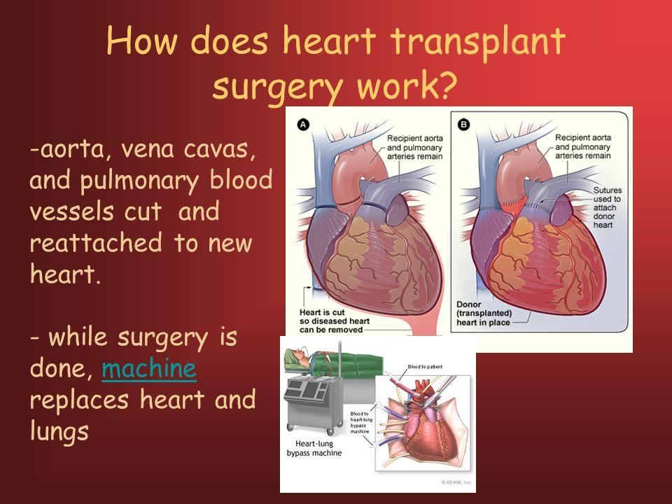 livestream recording heart transplantation - 960×720