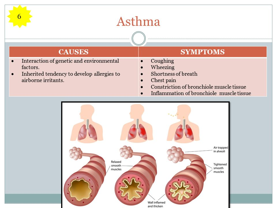 Asthma CAUSESSYMPTOMS  Interaction of genetic and environmental factors.