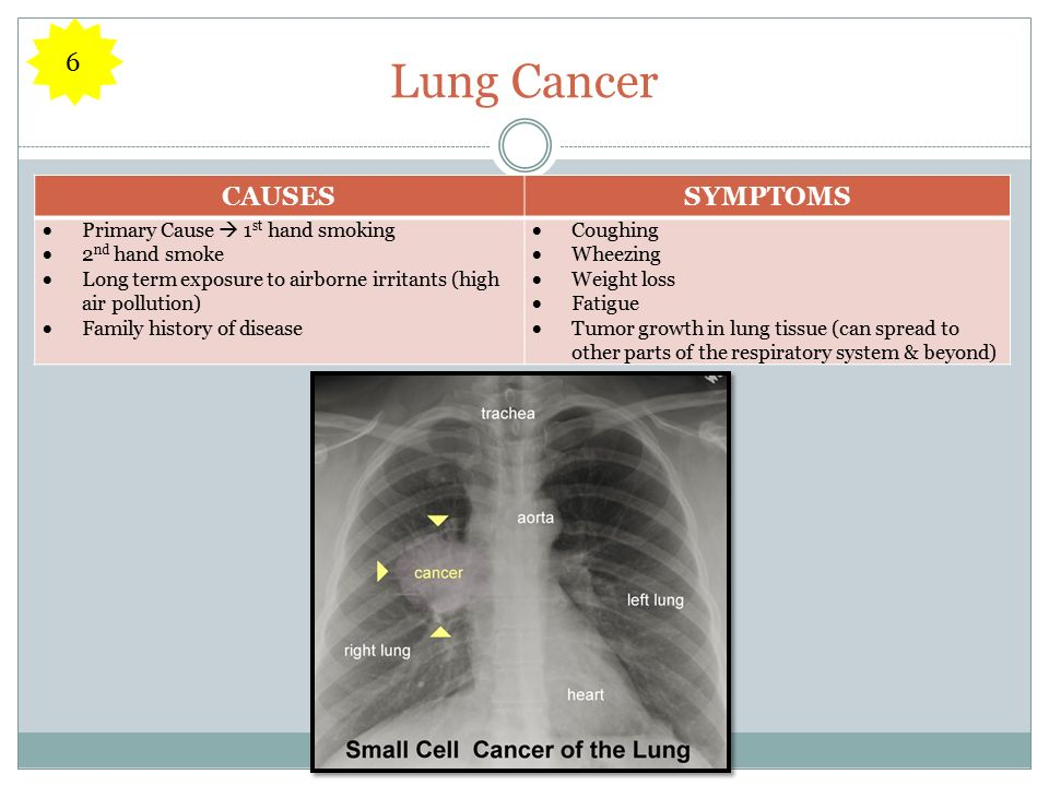 Lung Cancer CAUSESSYMPTOMS  Primary Cause  1 st hand smoking  2 nd hand smoke  Long term exposure to airborne irritants (high air pollution)  Family history of disease  Coughing  Wheezing  Weight loss  Fatigue  Tumor growth in lung tissue (can spread to other parts of the respiratory system & beyond) 6