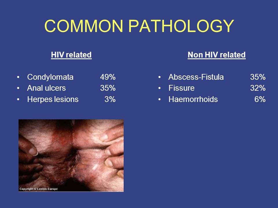 anal fissure hiv