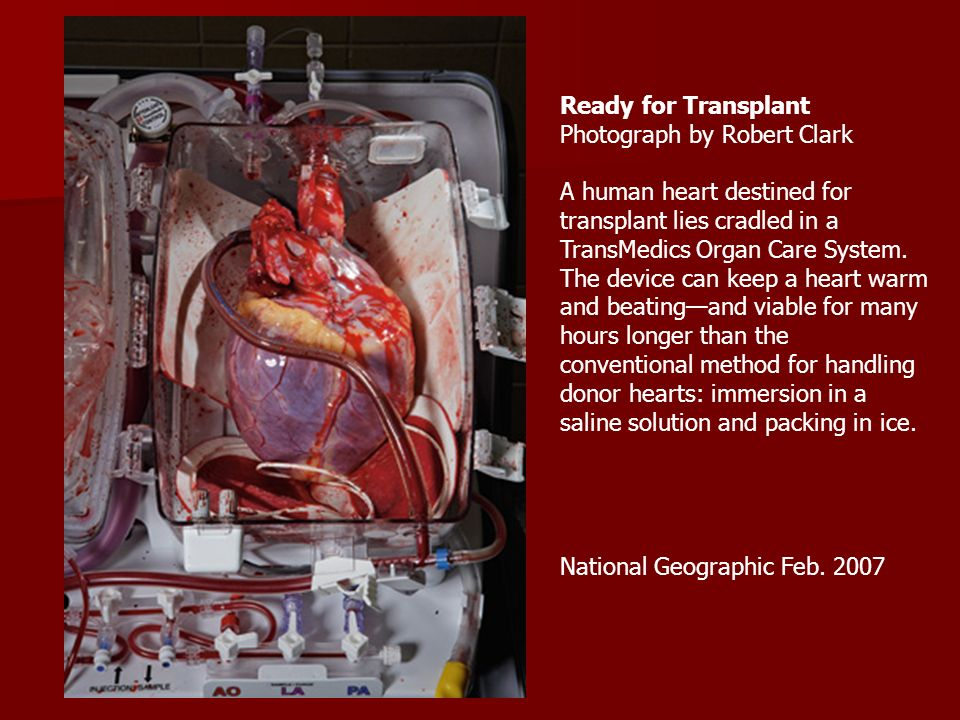 Circulatory system label heart diagram for numbers 1 ppt download ready for transplant photograph by robert clark a human heart destined for transplant lies cradled in ccuart Images