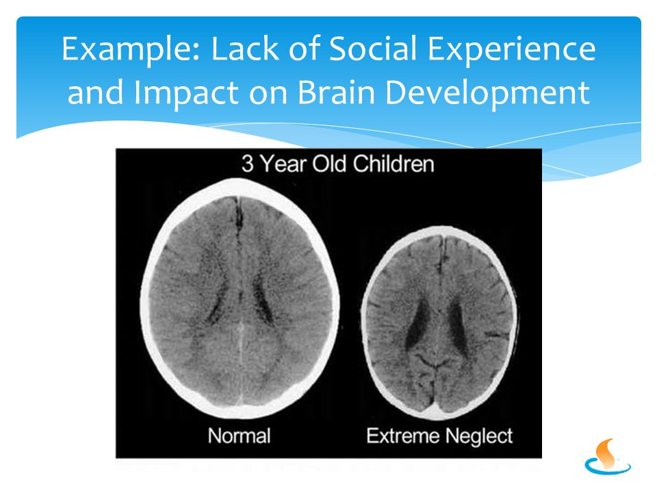 Example: Lack of Social Experience and Impact on Brain Development