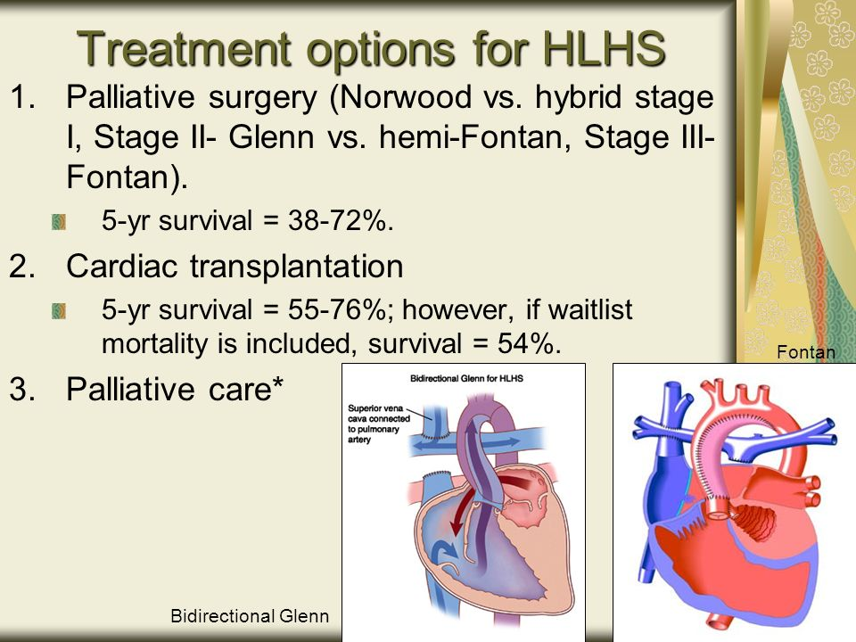 Treatment options for HLHS 1.Palliative surgery (Norwood vs.