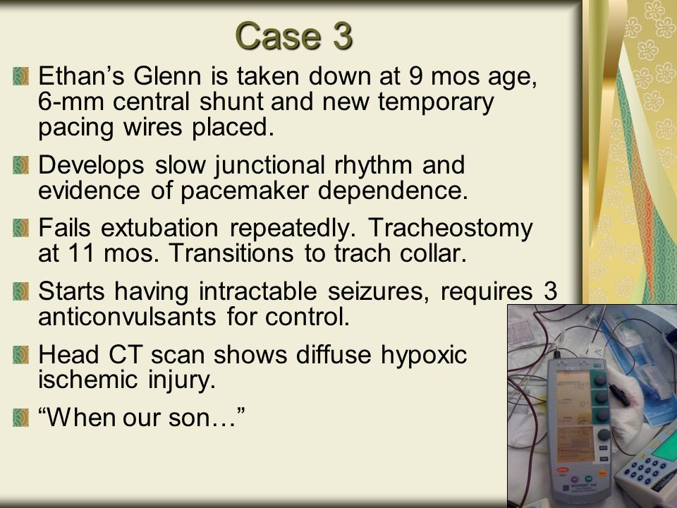 Case 3 Ethan's Glenn is taken down at 9 mos age, 6-mm central shunt and new temporary pacing wires placed.