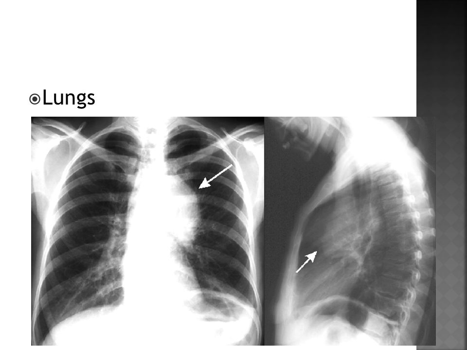  Lungs