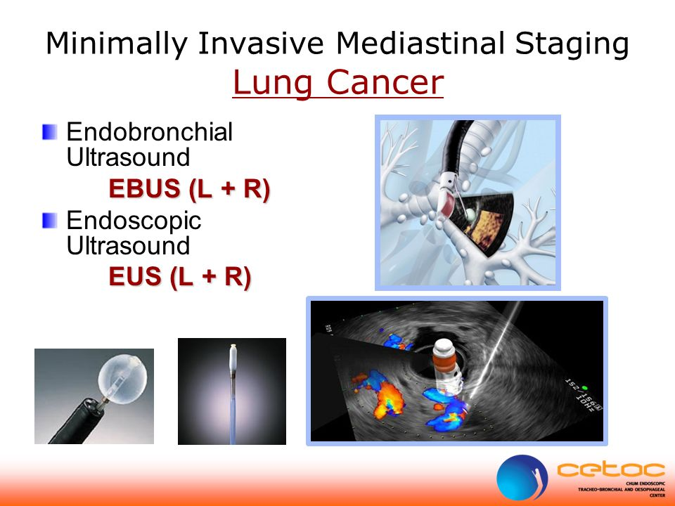 Minimally Invasive Mediastinal Staging Lung Cancer Endobronchial Ultrasound EBUS (L + R) Endoscopic Ultrasound EUS (L + R)