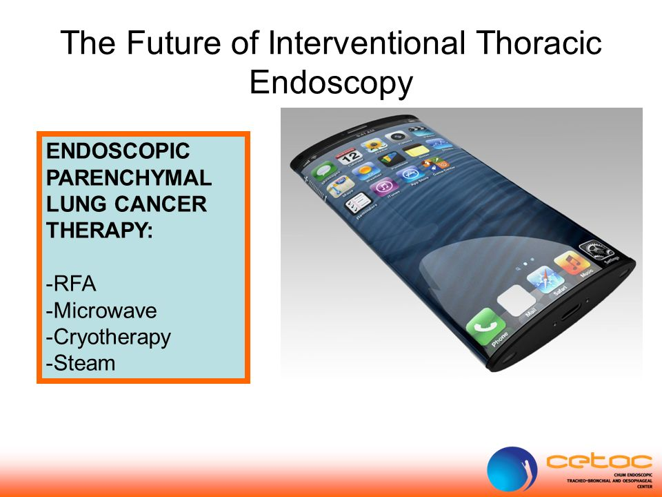The Future of Interventional Thoracic Endoscopy ENDOSCOPIC PARENCHYMAL LUNG CANCER THERAPY: -RFA -Microwave -Cryotherapy -Steam