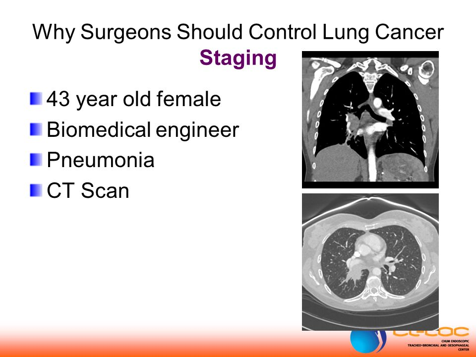 43 year old female Biomedical engineer Pneumonia CT Scan Why Surgeons Should Control Lung Cancer Staging