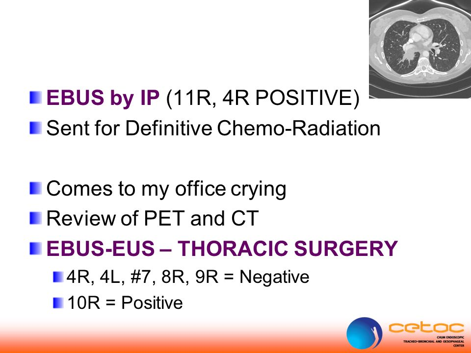 EBUS by IP (11R, 4R POSITIVE) Sent for Definitive Chemo-Radiation Comes to my office crying Review of PET and CT EBUS-EUS – THORACIC SURGERY 4R, 4L, #7, 8R, 9R = Negative 10R = Positive
