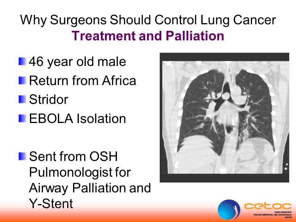 Why Surgeons Should Control Lung Cancer Treatment and Palliation 46 year old male Return from Africa Stridor EBOLA Isolation Sent from OSH Pulmonologist for Airway Palliation and Y-Stent