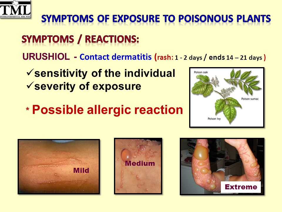 Mild Medium Extreme URUSHIOL - Contact dermatitis ( rash: days / ends 14 – 21 days ) sensitivity of the individual severity of exposure * Possible allergic reaction