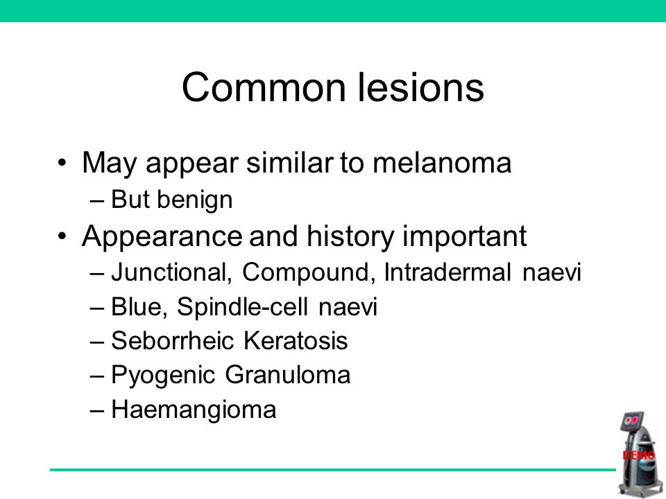 Common lesions May appear similar to melanoma –But benign Appearance and history important –Junctional, Compound, Intradermal naevi –Blue, Spindle-cell naevi –Seborrheic Keratosis –Pyogenic Granuloma –Haemangioma