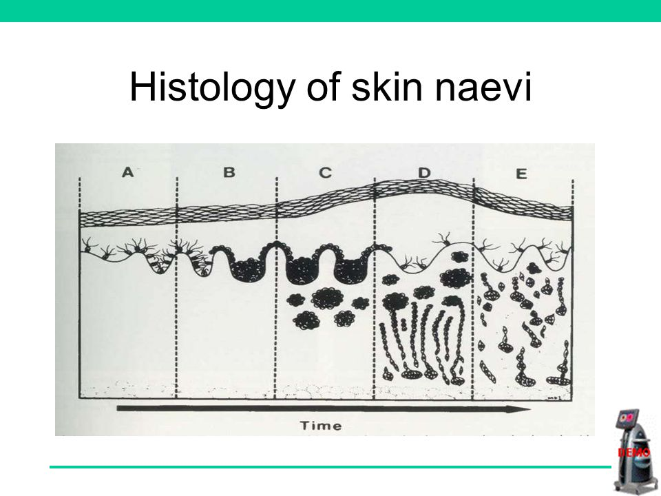 Histology of skin naevi Normal skin