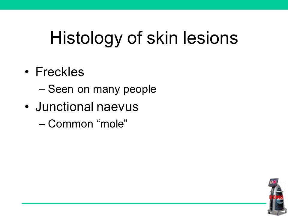Histology of skin lesions Freckles –Seen on many people Junctional naevus –Common mole