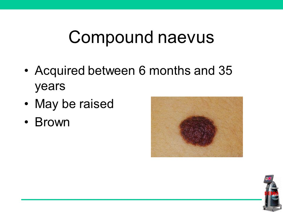 Compound naevus Acquired between 6 months and 35 years May be raised Brown
