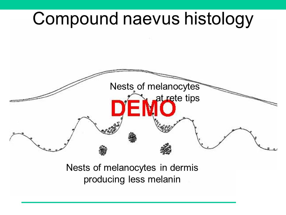 Compound naevus histology Nests of melanocytes at rete tips Nests of melanocytes in dermis producing less melanin