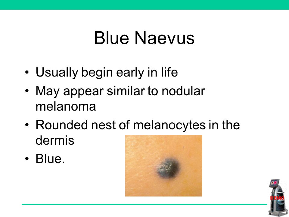 Blue Naevus Usually begin early in life May appear similar to nodular melanoma Rounded nest of melanocytes in the dermis Blue.