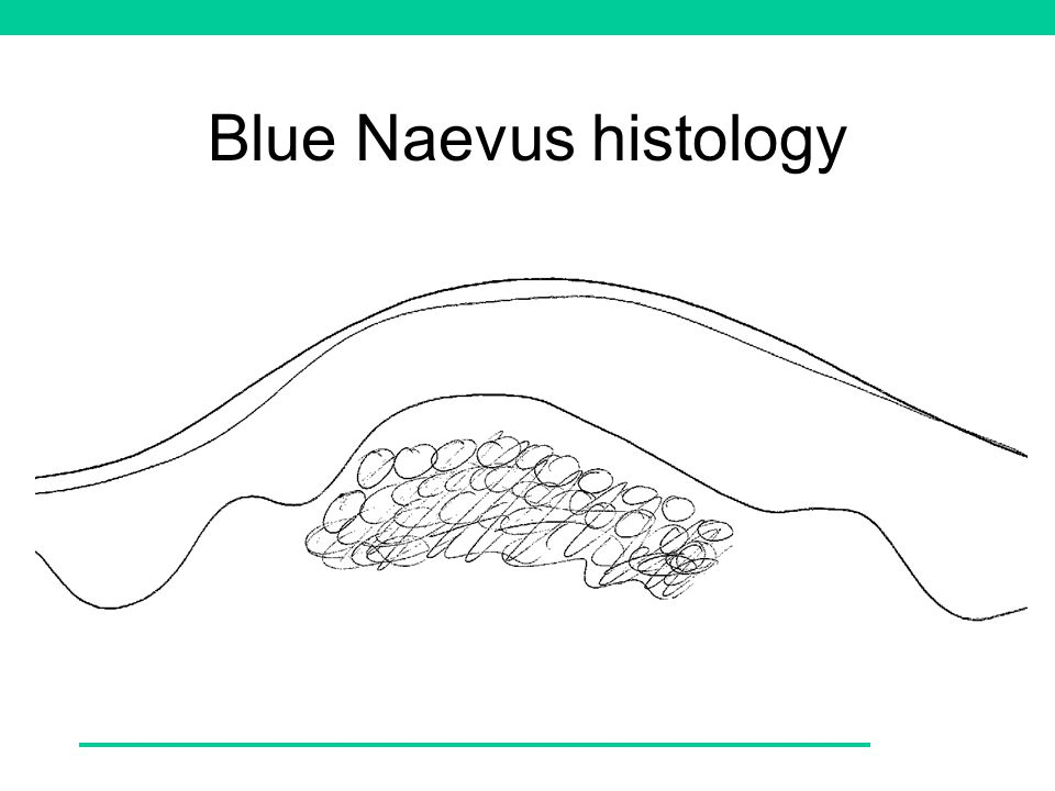 Blue Naevus histology