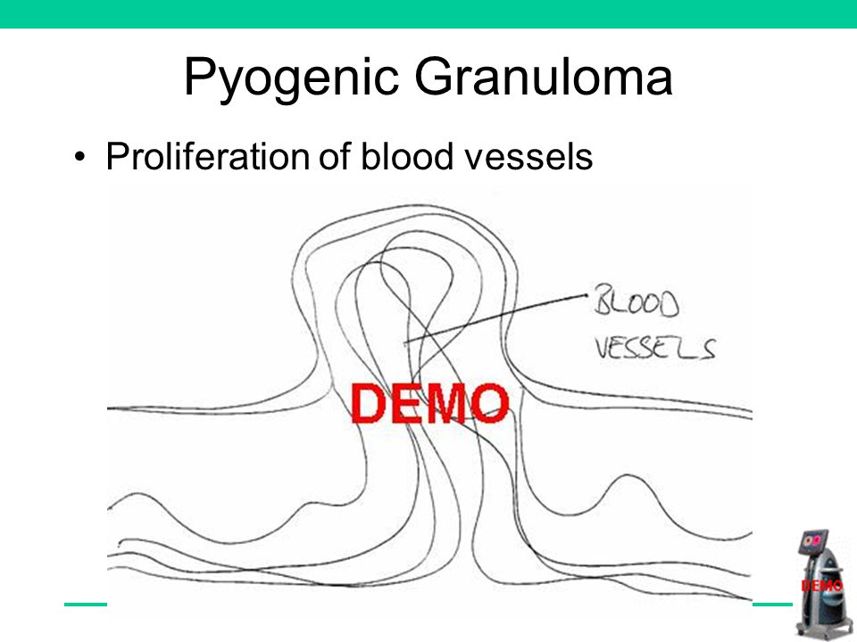 Pyogenic Granuloma Proliferation of blood vessels