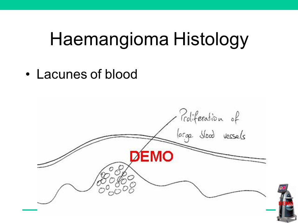 Haemangioma Histology Lacunes of blood