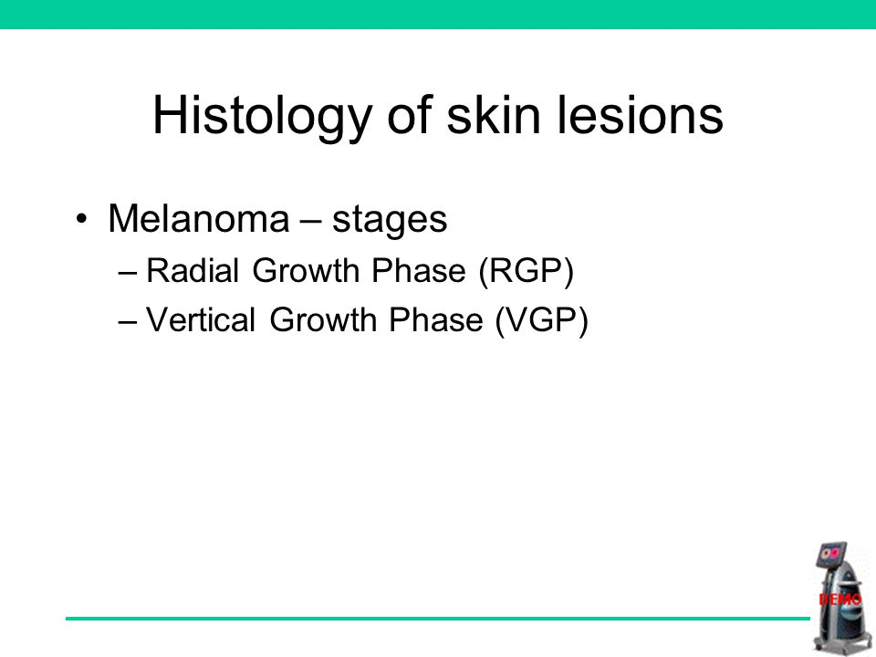 Histology of skin lesions Melanoma – stages –Radial Growth Phase (RGP) –Vertical Growth Phase (VGP)