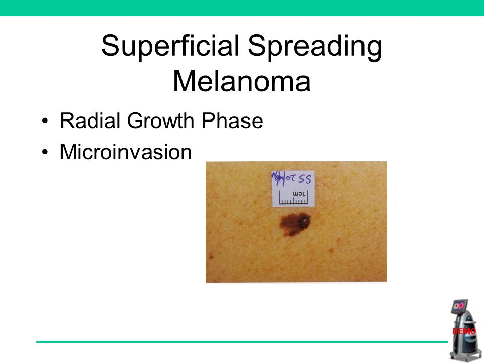 Superficial Spreading Melanoma Radial Growth Phase Microinvasion