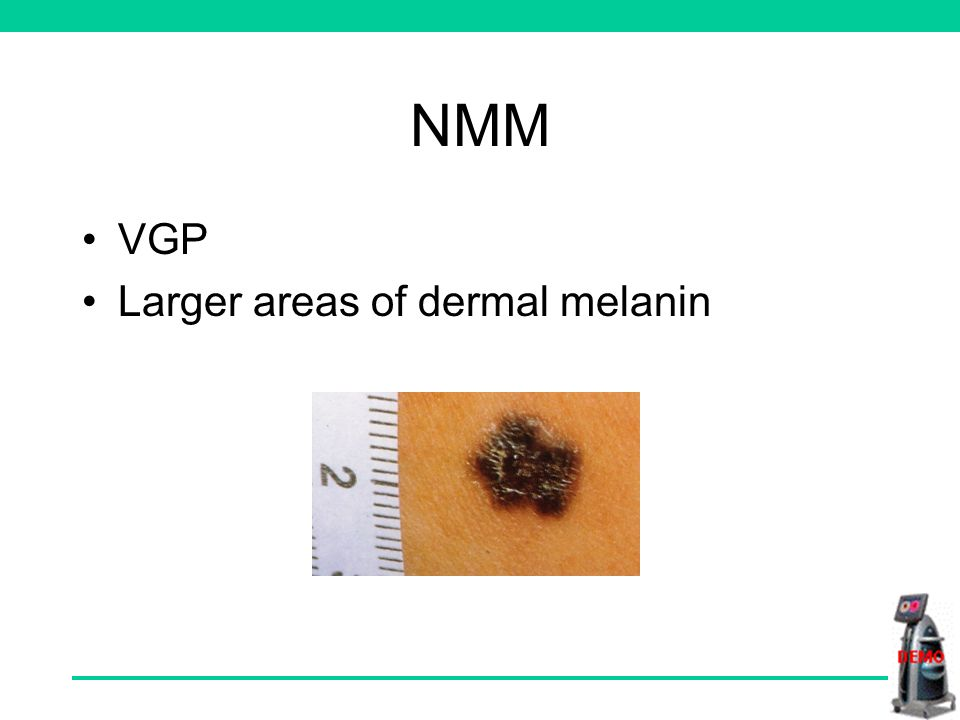 NMM VGP Larger areas of dermal melanin